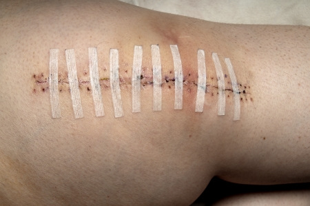 wound care: Patient who has had a total knee replacement