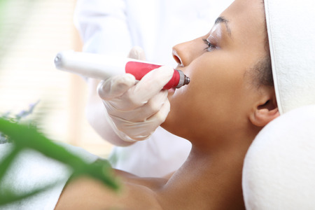 scars: Mesotherapy microneedle, the woman at the