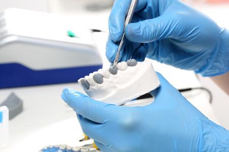 dentures: Prosthetics. Stock Photo