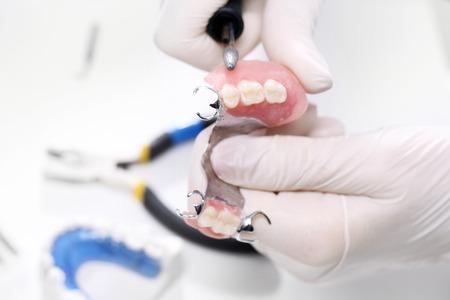 dentier: Les prothèses partielles sur un arc métallique