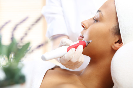 revitalization: Microneedle mesotherapy, treatment for neck, the woman at the beautician Stock Photo