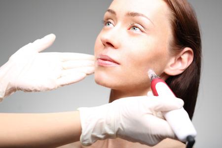 Mesotherapie Microneedle, die Frau bei der Kosmetikerin