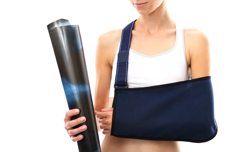 A woman with a broken arm in a sling and holding a hand radiograph Stock Photo