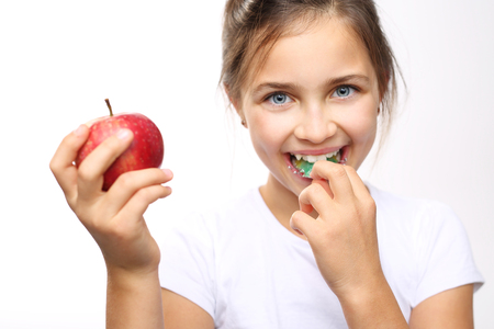 Healthy and strong teeth child. The girl in the orthodontic apparatus with apple