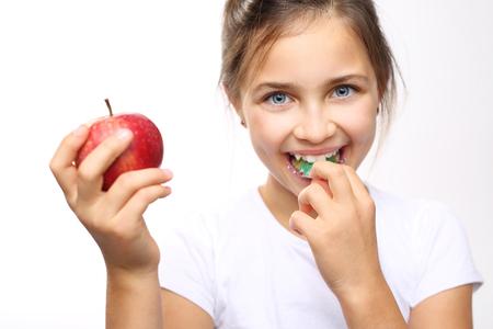 ortodoncia: Saludable y fuerte hijo dientes. La chica en el aparato de ortodoncia con manzana