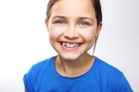 Een tienermeisje met tandsteunen