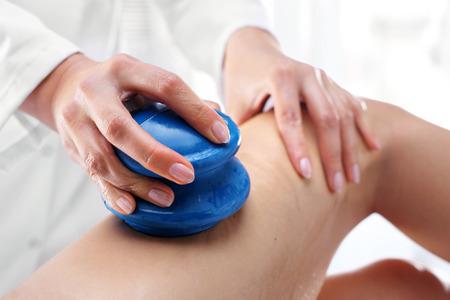 mujer celulitis: Chino masaje con ventosas anticelulítico. Esteticista masajeó las mujeres pueden caucho burbujas de masaje. Foto de archivo