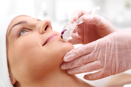 Face skin. Microdermabrasion. Stock Photo