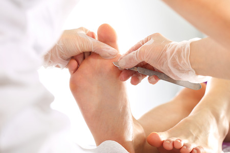 Imprint on the foot. The Doctor Removes the imprint on the foot with a scalpel Stock Photo