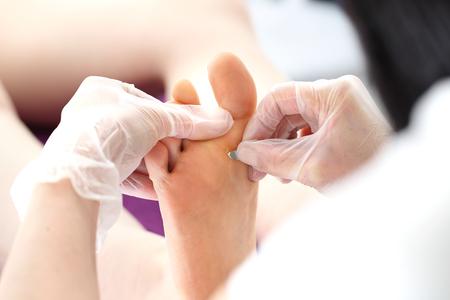 Extracción de las huellas en el pie.