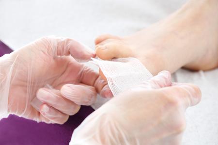 Dressing on the toe. Podology, putting gauze dressings on the big toe