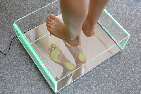 整形外科手術での podoscopic 検査中の女性の足。 写真素材