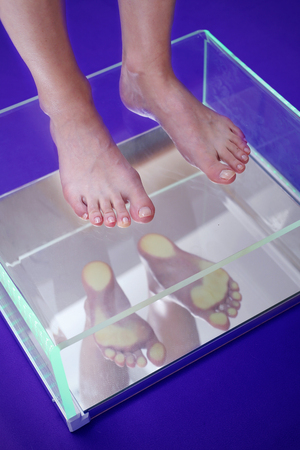 Flat foot, foot podoscope test.