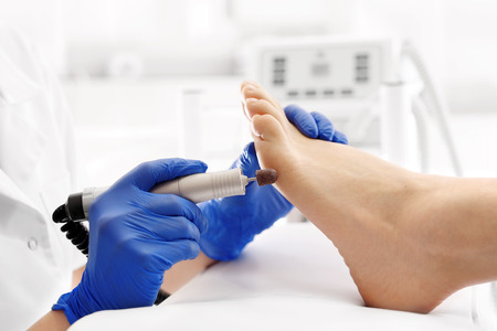 Medical pedicure. Podologist develops feet with a milling machine. Stockfoto