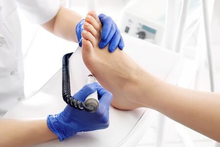 Pedicure treatment. The doctor removes the footprint on the foot with a miller Stock Photo