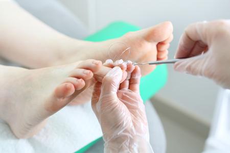 Ingrown toenail. The surgeon puts a clamp on an ingrown toenail