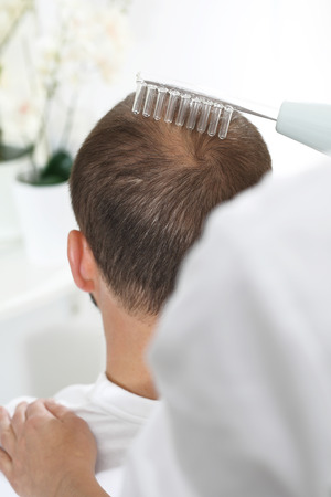 Oxygen skininfusion of the scalp. The head of a man with thinning hair during a care treatment