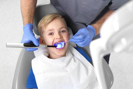 Sello fotopolimerizable, un niño en un consultorio dental