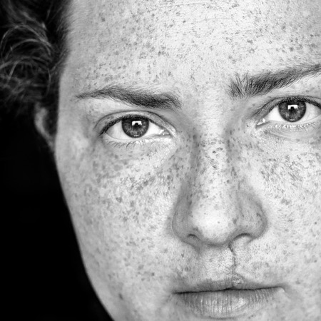 Closeup Portrait of Caucasian Woman with Freckles and Cleft Lip Looking Directly at Camera Standard-Bild