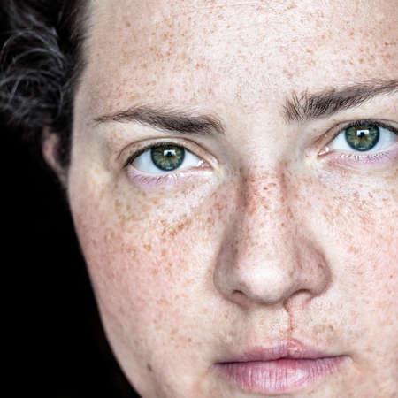 Primer plano retrato de mujer de raza caucásica con las pecas y el labio leporino mirando directamente a la cámara