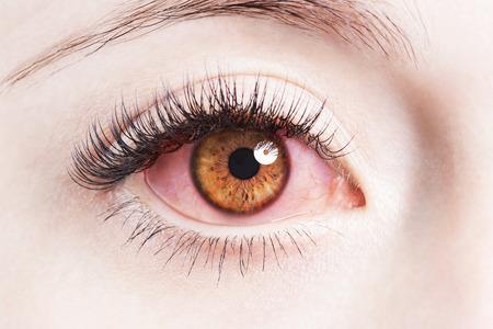 Cierre de la imagen de humanos irritados ojos rojos inyectados de sangre