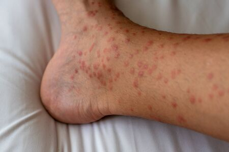 Close up of redness, itching and swelling after many mosquitos bite on the leg - allergy to mosquito saliva can cause papular hives or Skeeters syndrome