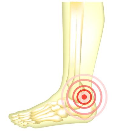Leg pain Stock Vector - 21059810