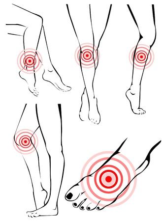 piedi nudi di bambine: Dolore Gambe Vettoriali