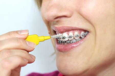 orthodontie: Hygiène à bretelles Banque d'images