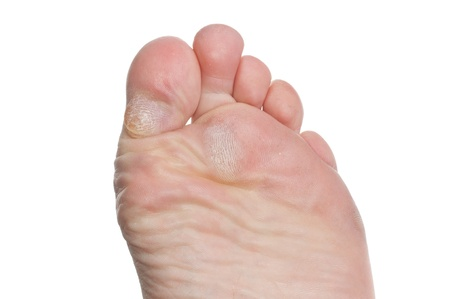 Callus on toes of a male isolated over white background photo