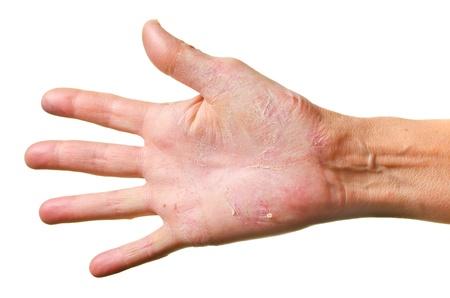 rash: Eczema en una mano aisladas sobre fondo blanco Foto de archivo