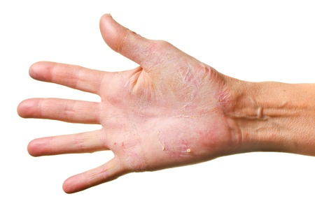 Eczema on a hand isolated over white background photo