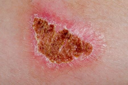 herida: Quemadura de segundo grado de un brazo de un hombre de curación