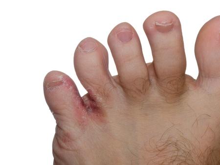 Close up of athletes foot fungus between a man