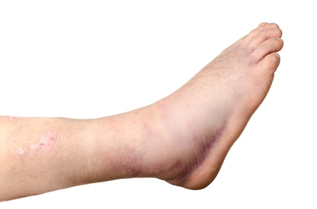 hemorragia: Roto el tobillo de una persona aislada sobre fondo blanco