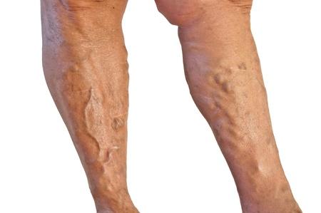 enlarged: Le vene varicose sulle gambe abbronzate isolato su sfondo bianco Archivio Fotografico