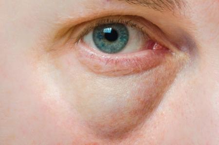 Puffy geschwollenen Auge auf einer kaukasischen Person Standard-Bild - 23322904