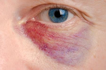 bruised: Black eye on a caucasian man close up