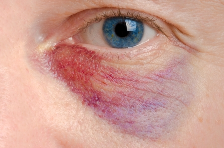 Black eye on a caucasian man close up