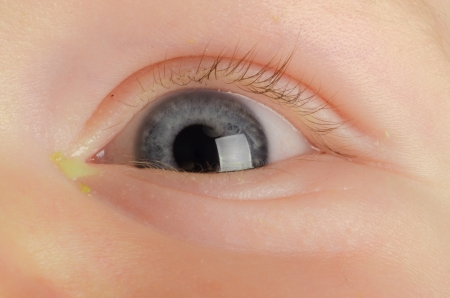 Pink eye  Conjunctivitis  infection on a baby