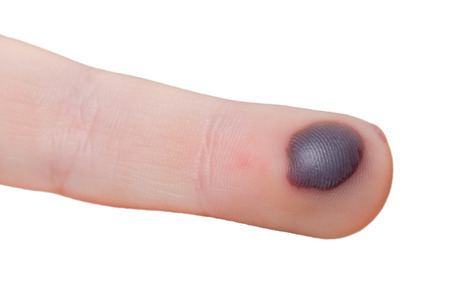 Blood blister on a finger isolated on white