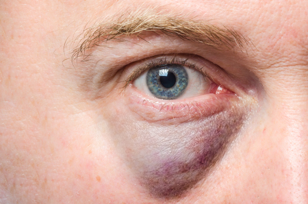 crying eyes: Puffy swollen eye on a white man Stock Photo