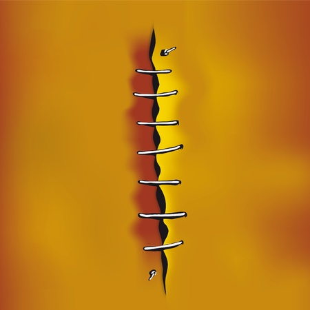 suture: Cut sew Illustration