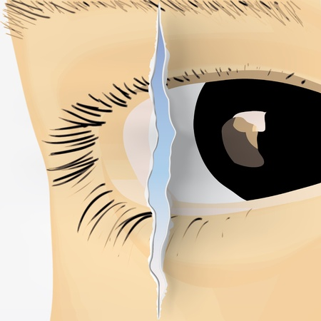 eyelids: Eye crack Illustration