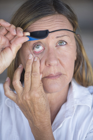 Portrait attractive mature woman lifting eye patch worn as protection after injury, blurred background. photo