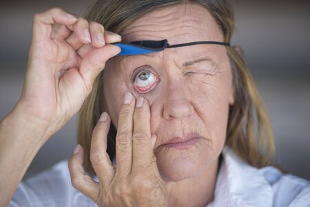 Portrait suffering attractive mature woman lifting eye patch worn as protection after injury, blurred background. photo