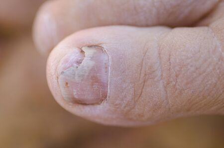 toenail fungus: Close up image of broken toenail caused by fungus infection. Stock Photo