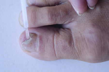 toenail: Close up image of broken toenail caused by fungus infection receiving tincture medication by brush applicator.