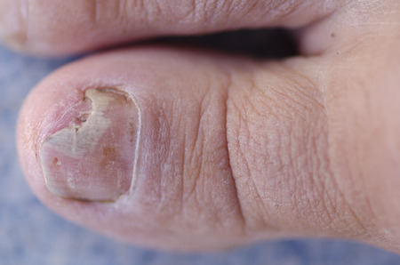 toenail: Close up image of broken toenail caused by fungus infection on blue background.