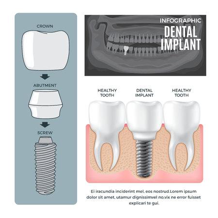 Infografik Zahnimplantat Struktur Info Poster Standard-Bild - 73937835